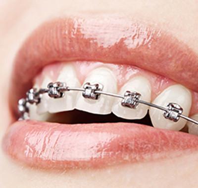 ortodoncia2